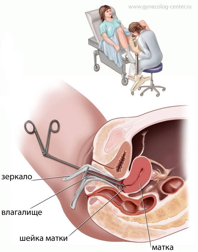 Кольпоскопия при беременности — что за анализ, как проводится