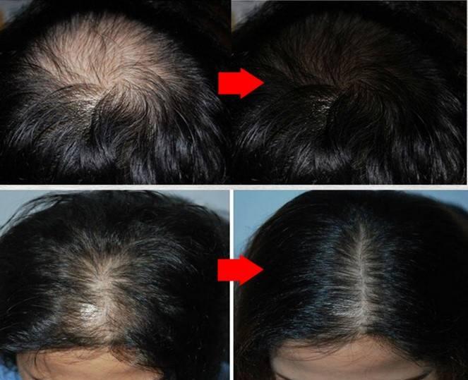 Лечение выпадения волос при климаксе
