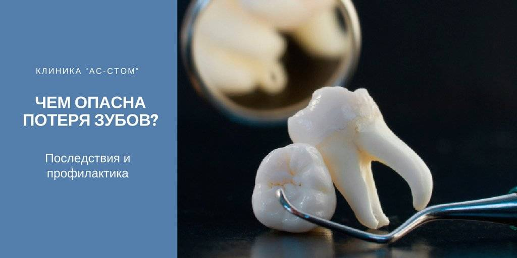 Некачественное протезирование зубов – куда обращаться