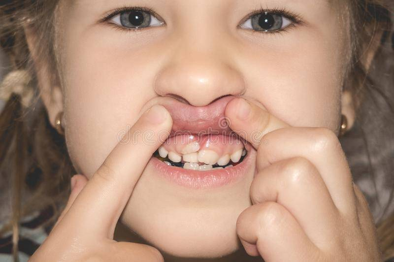 У сына прорезались зубы
