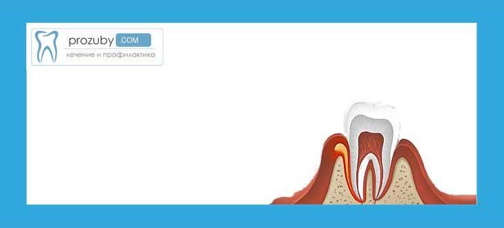 Воспаление надкостницы зуба лечение и симптомы заболевания