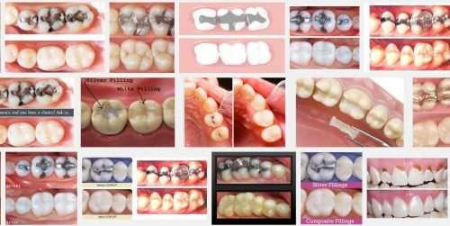 Через какое время можно есть после пломбирования зуба