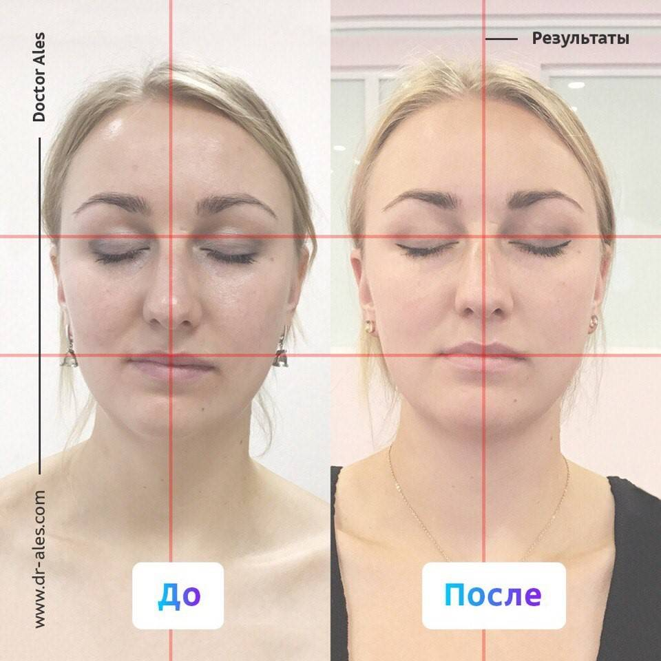 Асимметрия лица - как исправить без операции? виды и причины асимметрии лица