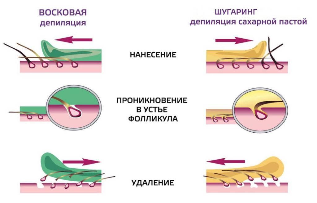 Что лучше выбрать: шугаринг или восковую эпиляцию