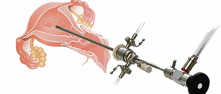 Как делают гистероскопию или эндоскопическое удаление полипа матки