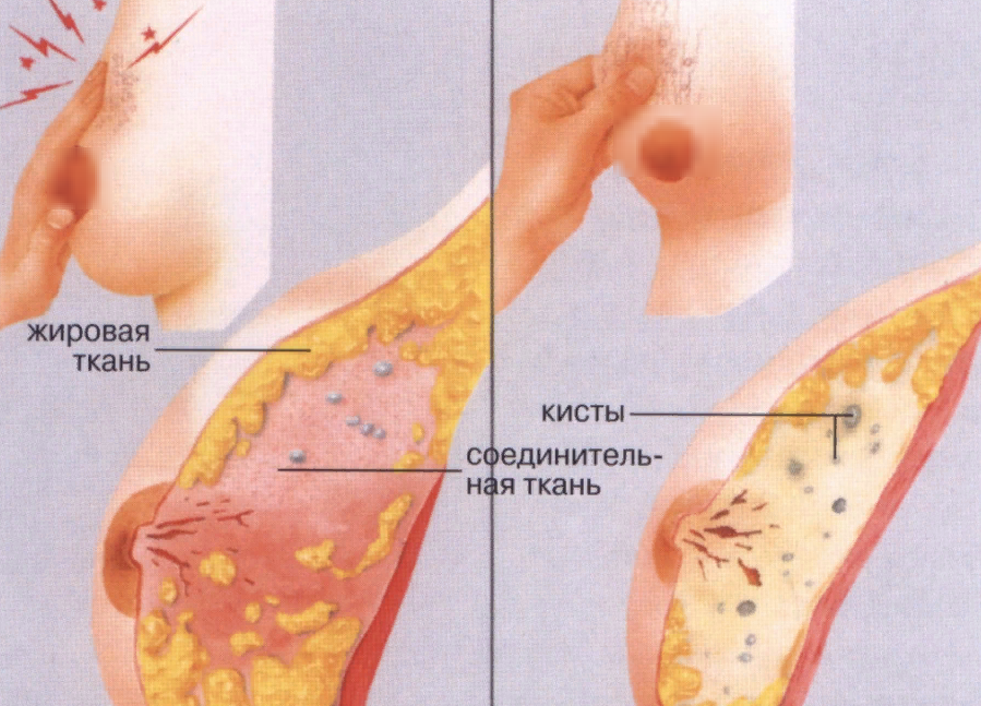 Железистая мастопатия: признаки и способы лечения