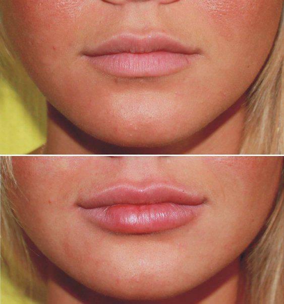 Контурная пластика губ — увеличение и коррекция формы за одну процедуру