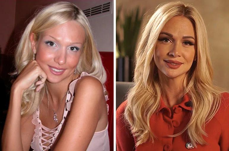 Виктория лопырева до и после пластики: какие операции делала звезда