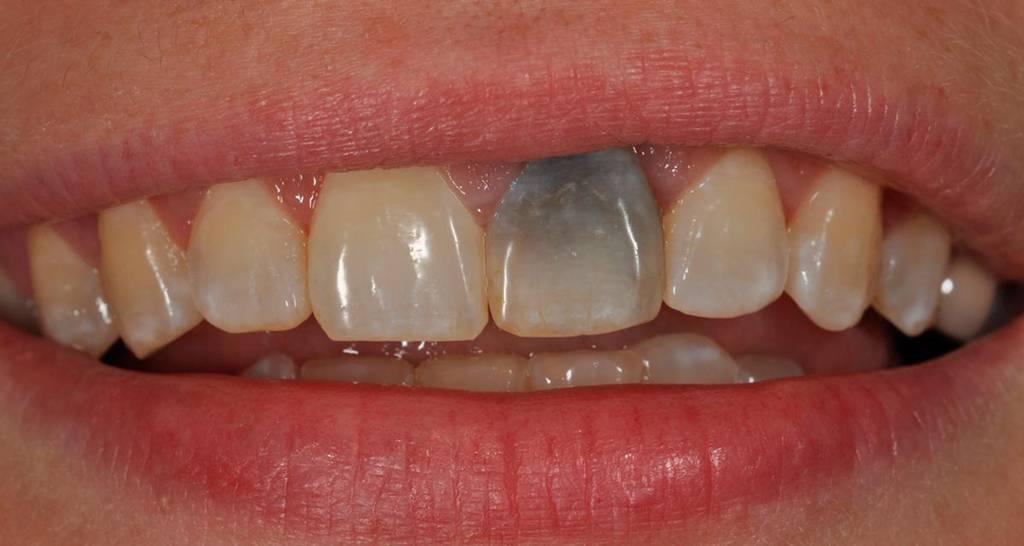 Можно ли отбеливать нарощенные зубы