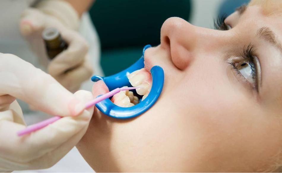 Что такое реминерализация зубов: обзор популярных средств и методов