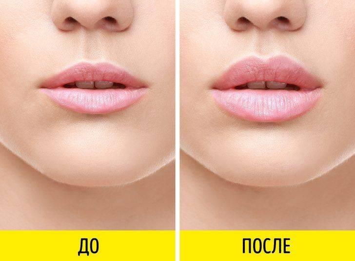 Как сделать губы красивыми при помощи упражнений?