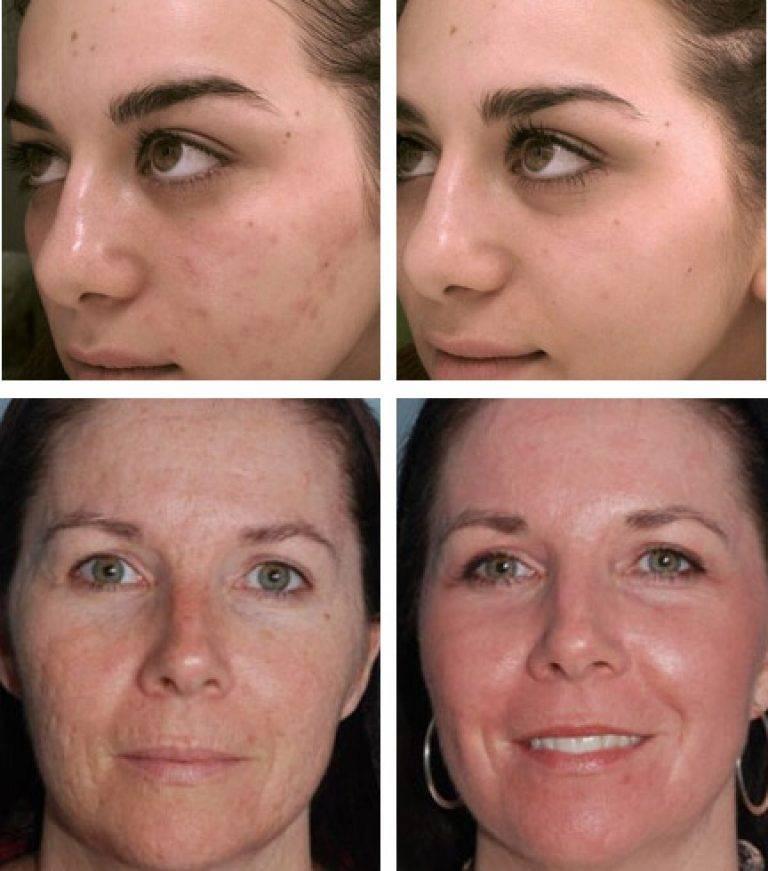 Микродермабразия и легкие пилинги для восстановления структуры кожи