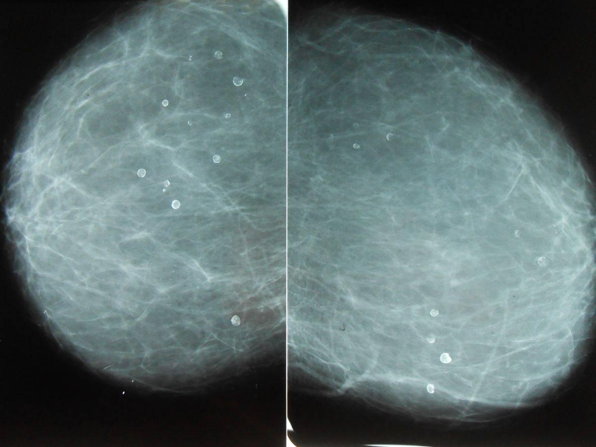 Микрокальцинаты в молочной железе: что это такое?