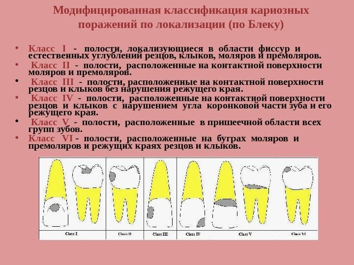 Классификация по глубине процесса кариес