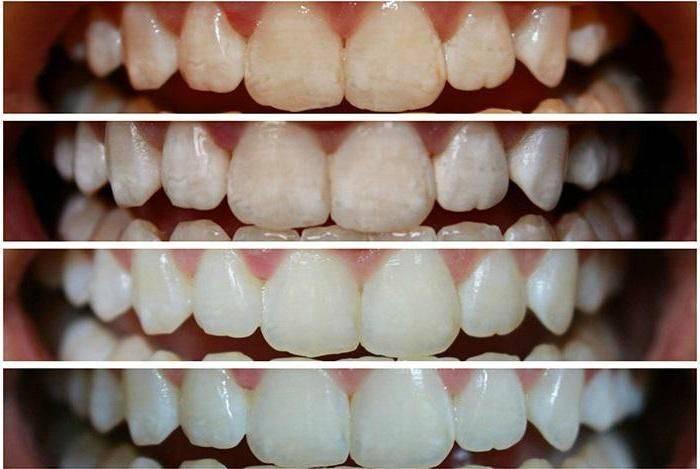 11 способов отбелить зубы в домашних условиях без вреда для эмали