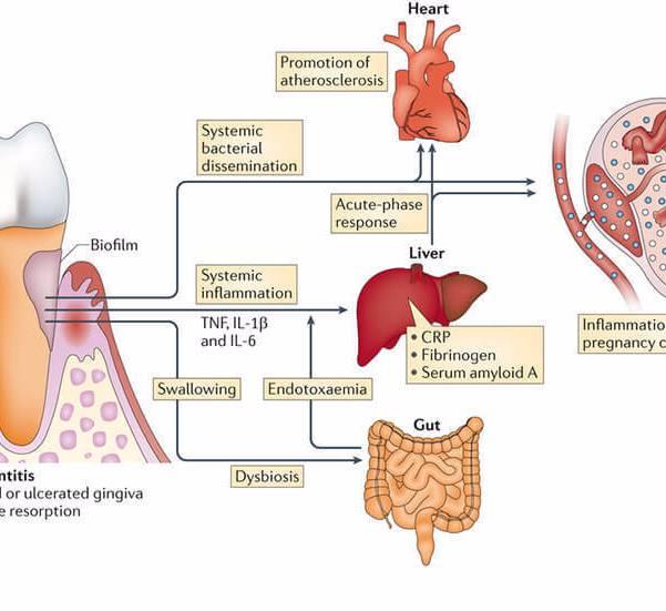 Микрофлора ротовой полости: неочевидные проблемы и очевидные решения. дисбактериоз после антибиотикотерапии