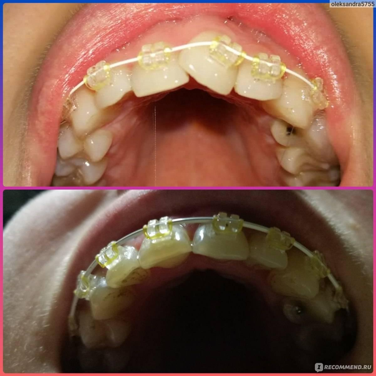 Шатаются зубы: что делать