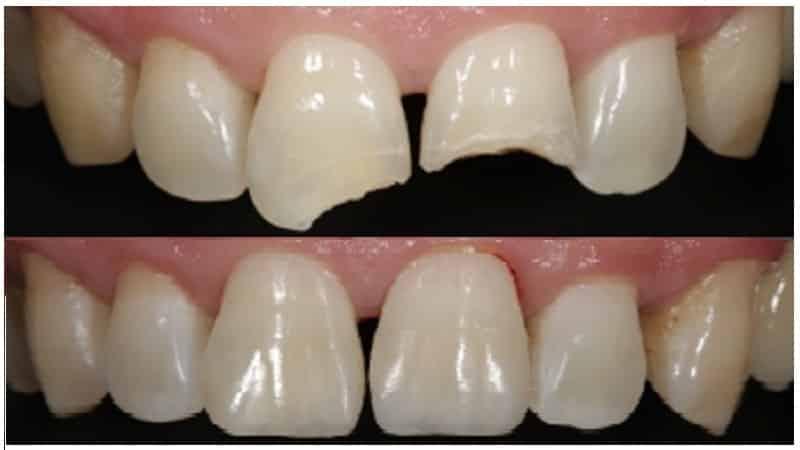 Наращивание зуба – различные методики и их стоимость
