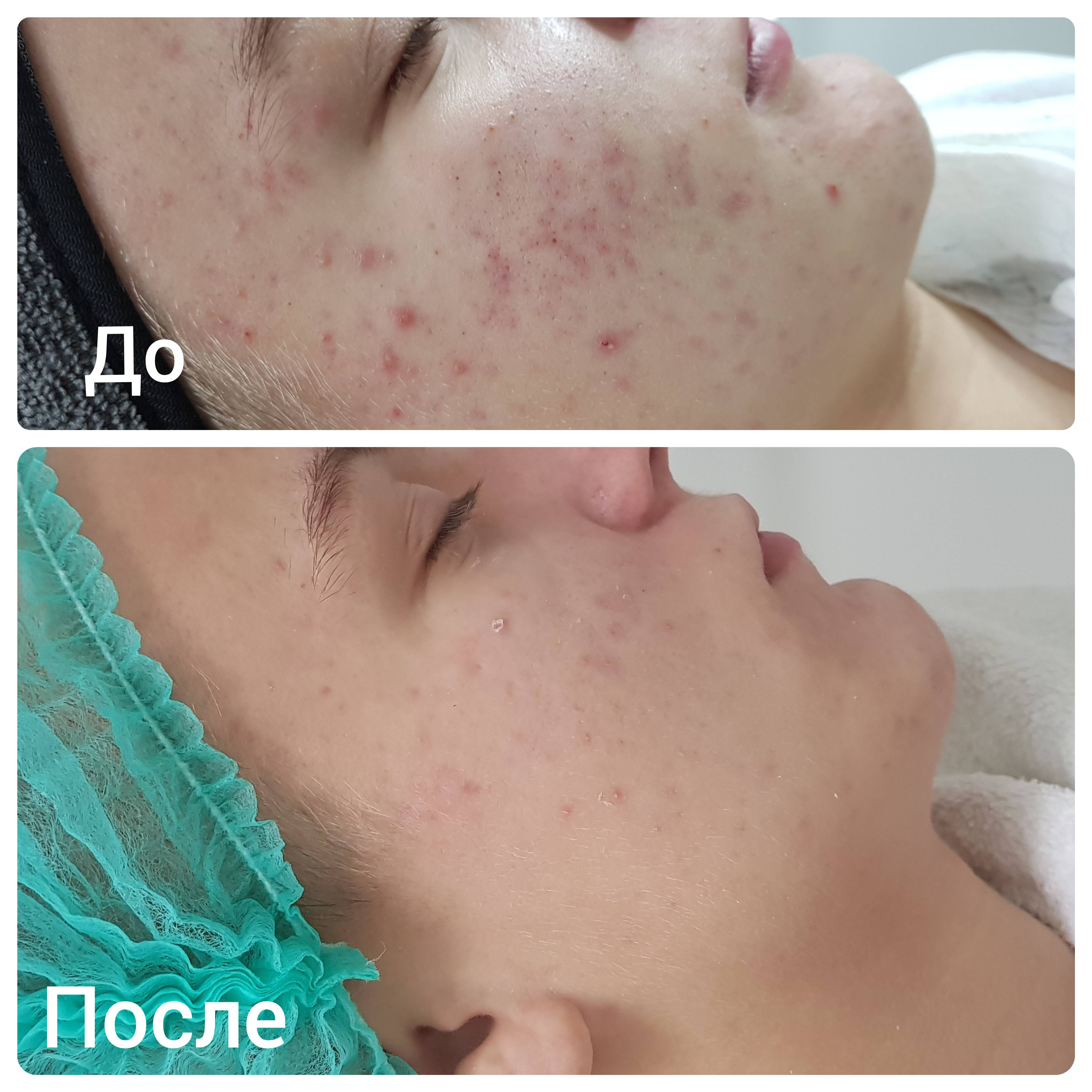 Атравматическая чистка лица – что это? фото до и после механической чистки