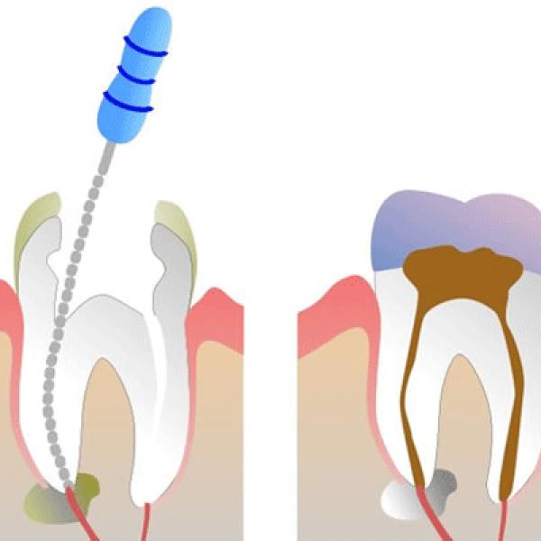 Как в домашних условиях убить нерв в зубе