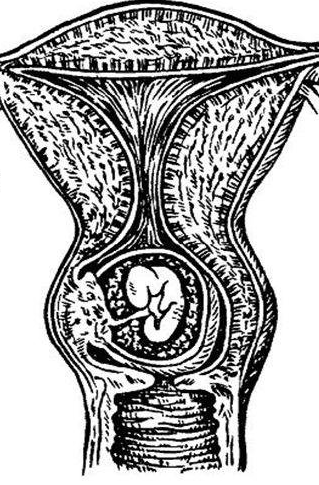 Утолщение передней стенки матки при беременности 13 недель