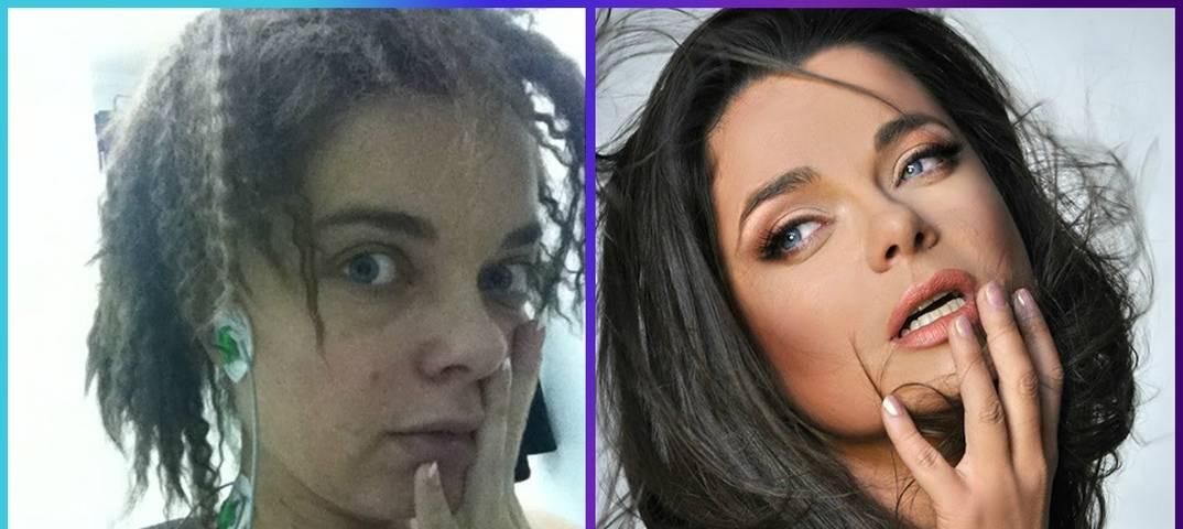 Ханна и сенсационные пластические операции: новое лицо – путь к успеху