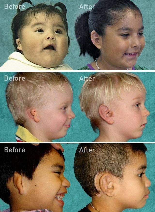 Микротия: что это за болезнь и как она лечится. аномалии развития уха — показания к операции