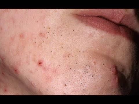 Черные точки на губе или вокруг губ