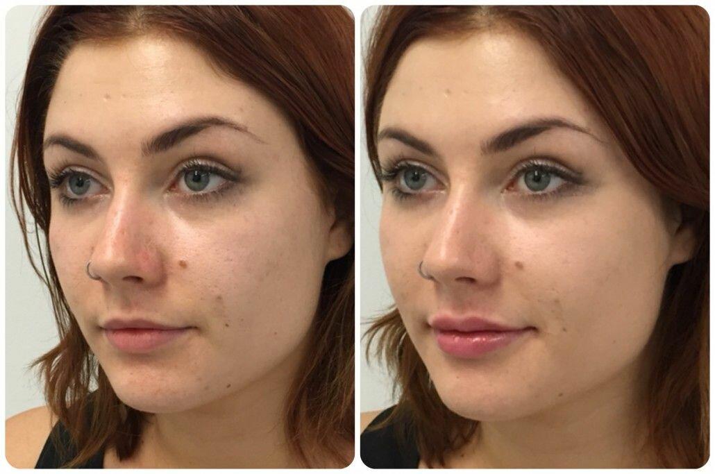 Как сделать скулы на лице без косметики: упражнения, макияж, пластика для женщин +фото до и после