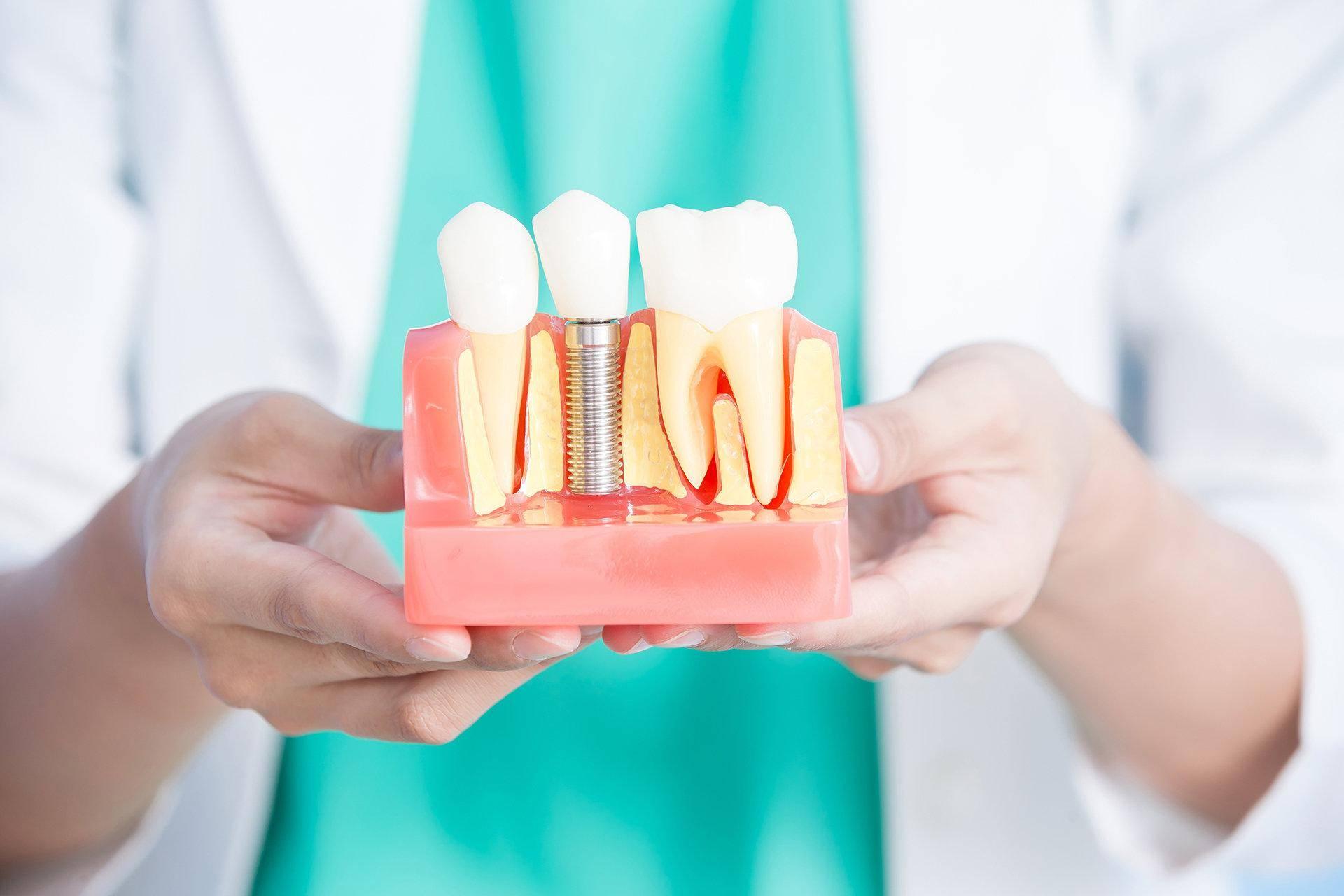 Имплантация зубов при сахарном диабете 2 типа