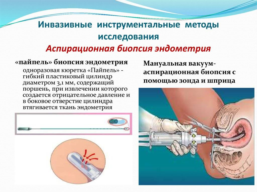 Что такое биопсия эндометрия и какие виды бывают