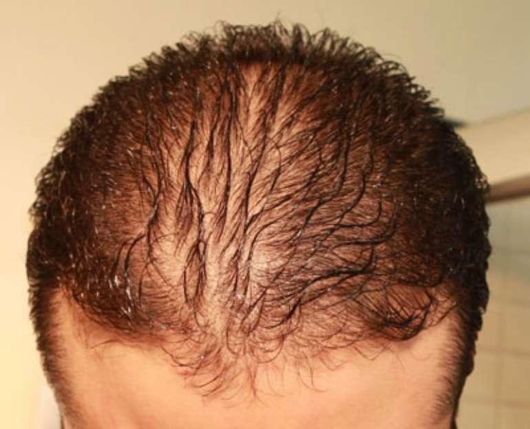 Выпадение волос при себорее