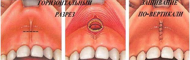 Пластика уздечки верхней губы: когда показана, способы проведения, восстановление после