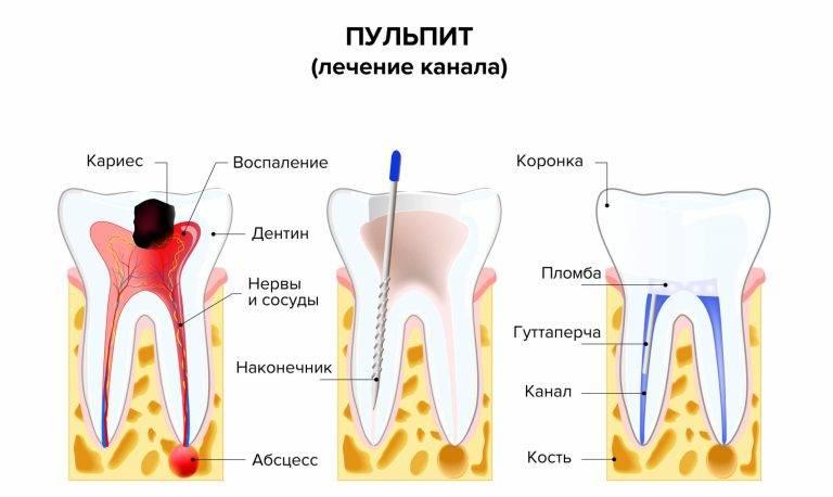 Что делать после удаления зуба, если сильно болит десна и началось воспаление, как долго и почему она может ныть?