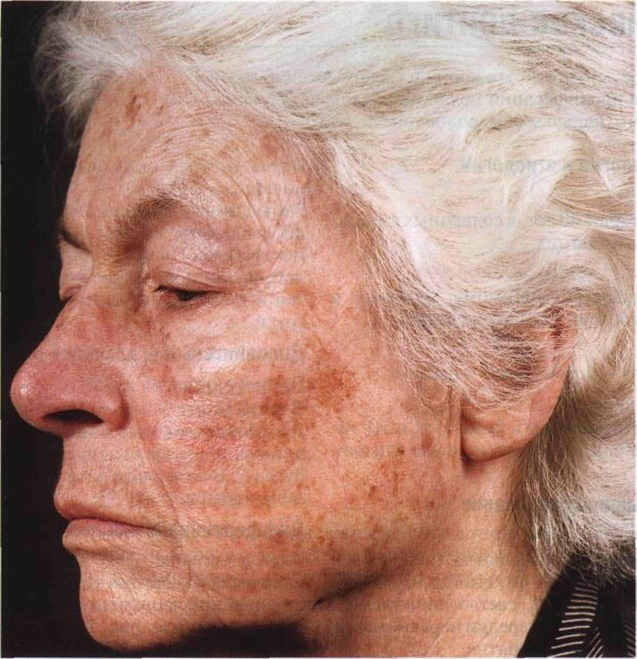 Кожные заболевания: виды, фото с описанием, причины, симптомы, лечение