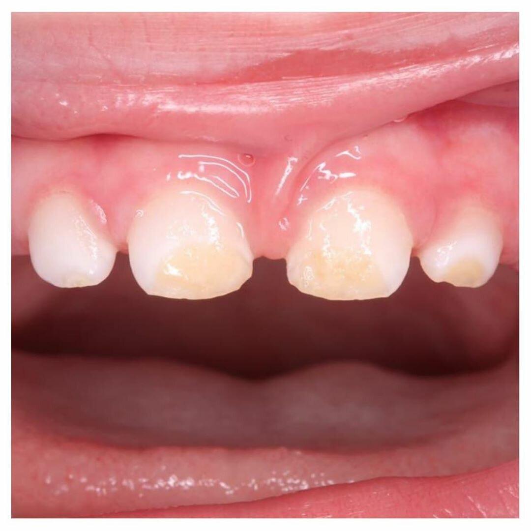Гипоплазия зубной эмали у ребенка: как лечится патология
