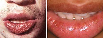 Хейлит на губах как лечить народными средствами