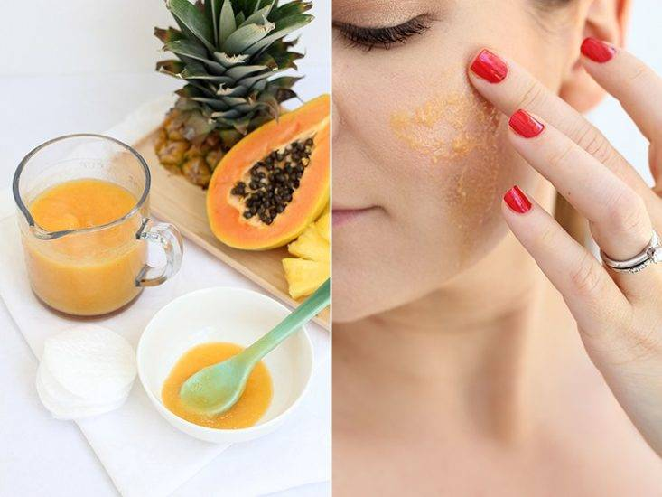 Пилинги от черных точек: перечень эффективных средств и способов очищения кожи лица