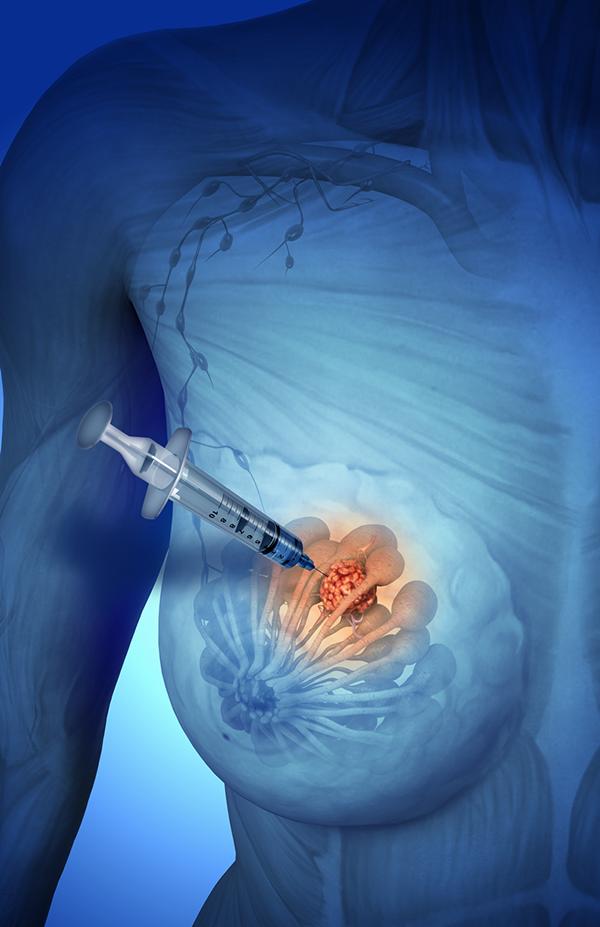 Для чего и как проводится биопсия молочных желез