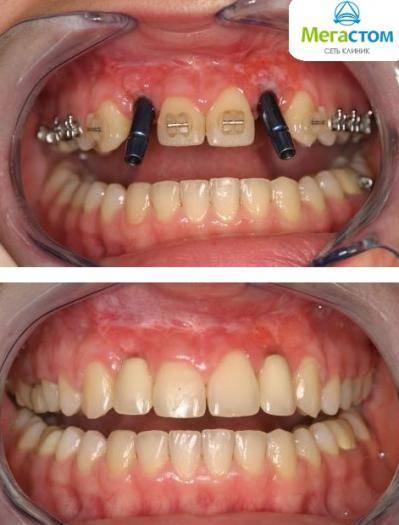 Современный метод безоперационной имплантации зубов
