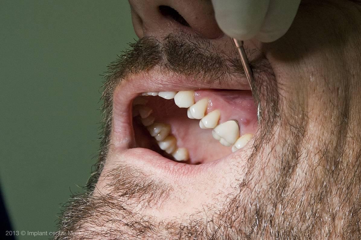 Способы удаления и лечения антибиотиками гранулемы зуба