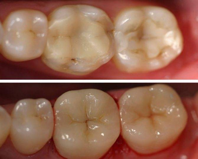 По каким причинам зуб реагирует на холодное после пломбирования?