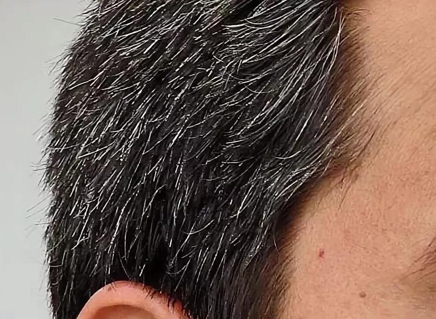 Седая голова после 30 – признак здоровья. почему появляется седина раньше времени