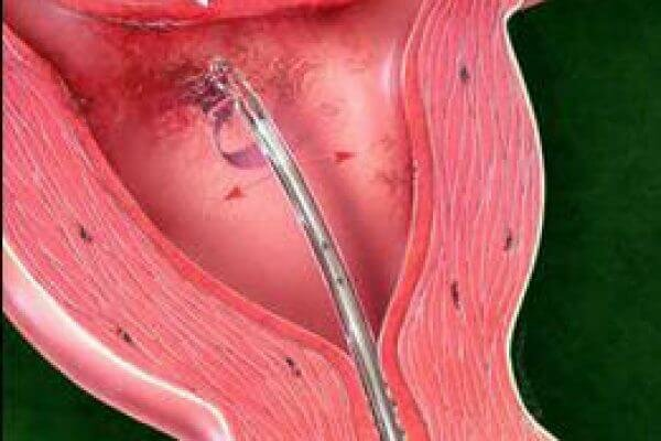 Проведение пайпель биопсии эндометрия: показания к процедуре, отзывы