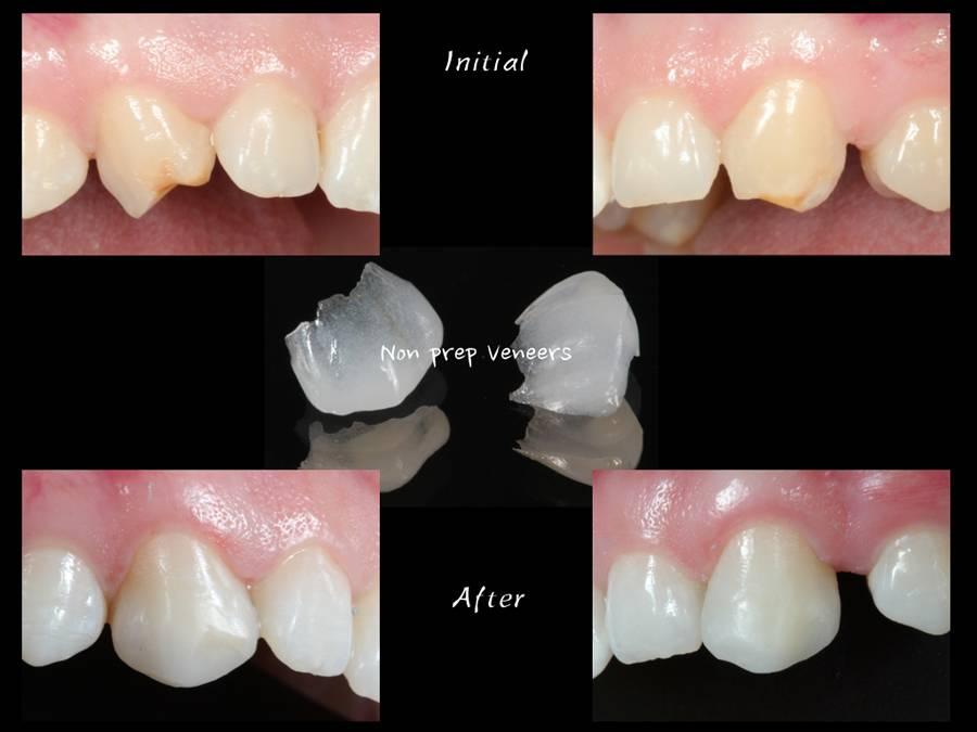 Виниры без препарирования зубов: возможно ли это?