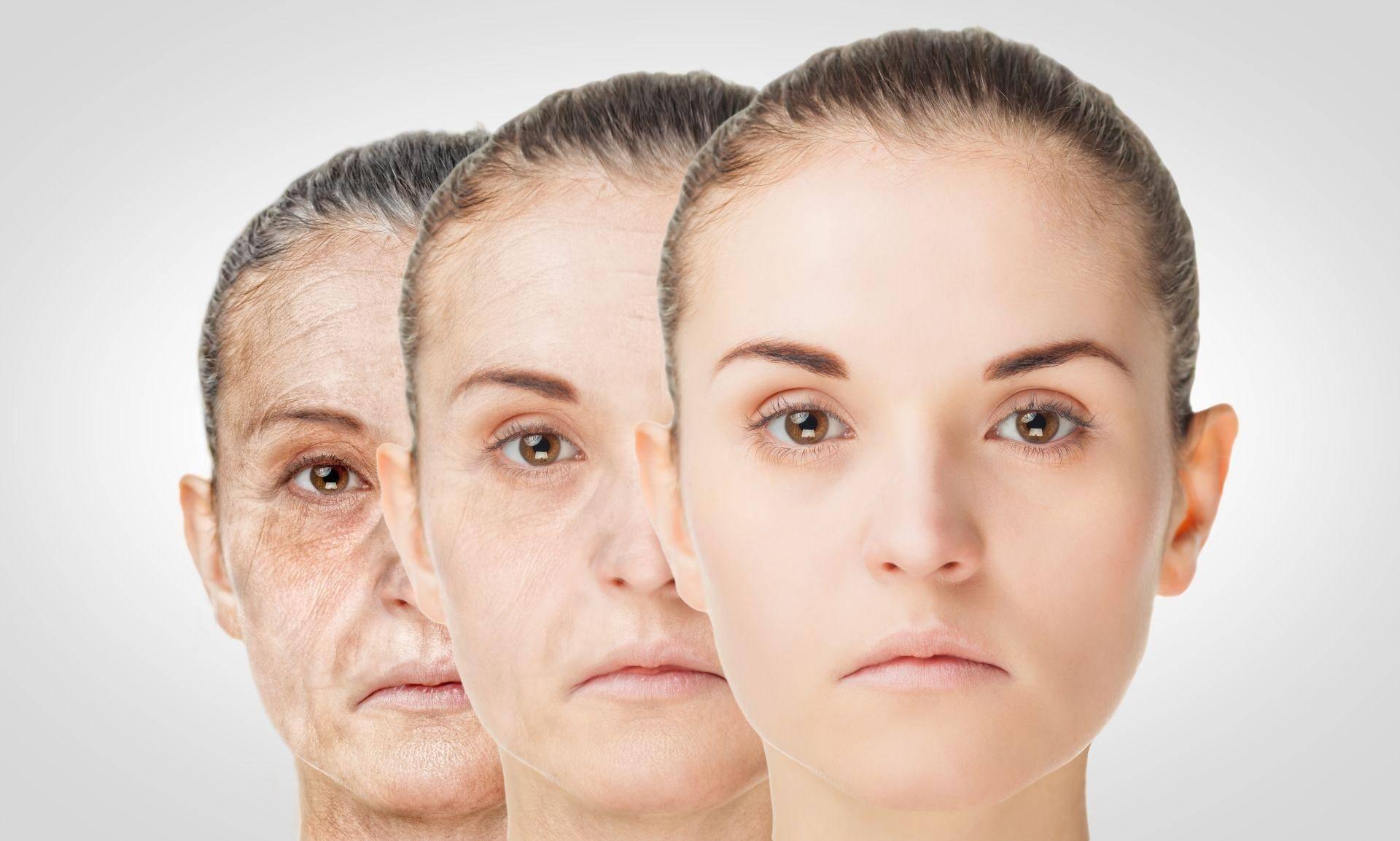 Омоложение лица — как вернуть молодость за короткое время? самые эффективные и действенные процедуры для омоложения лица