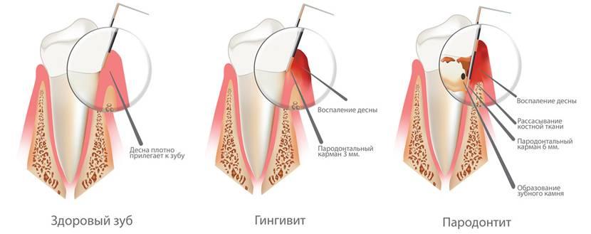 Оголился зуб у десны что делать
