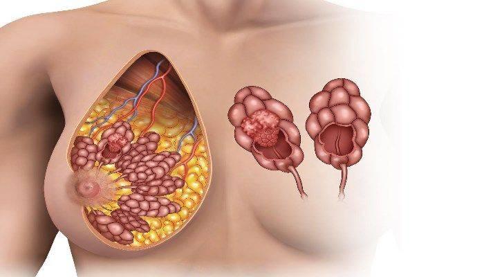 Почему болит грудь при нажатии или надавливании