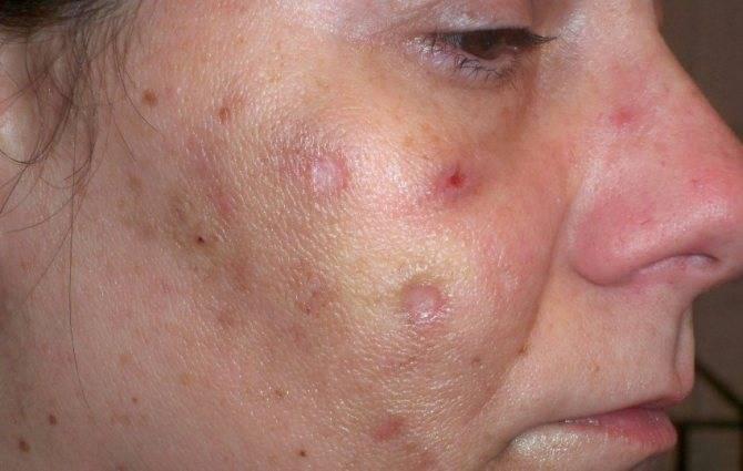 Признаки аллергии на медицинскую маску и меры профилактики