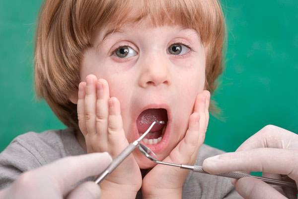 Как помочь ребенку? пульпит молочных зубов у детей